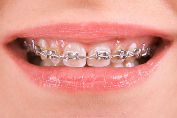 Styles of braces tenafly orthodontics they tend to be the most inexpensive treatment and can treat the most severe cases clear braces solutioingenieria Image collections